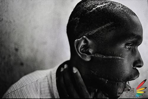 卢旺达大屠杀的疤痕